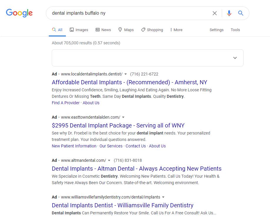 Dental Implant Marketing Using Google Ads